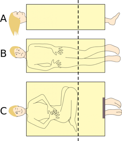 Фокус с разрезанием человека